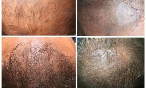 Mikropigmentacja skóry głowy Komorniki