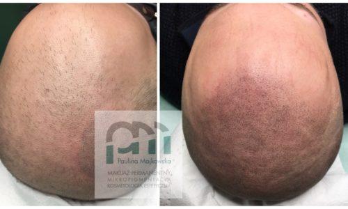 Mikropigmentacja skóry głowy Poznań