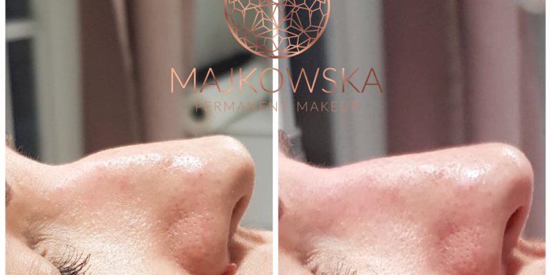 Modelowanie nosa Poznań Borówiec