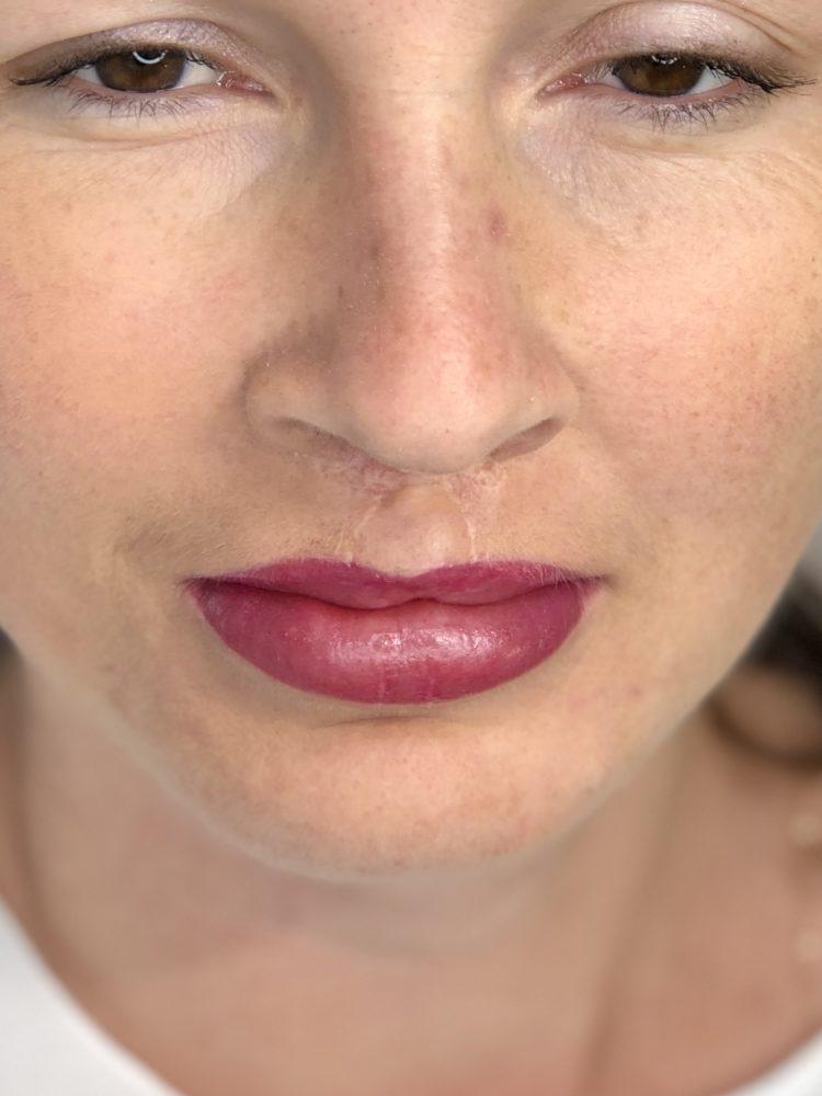 Pigmentacja medyczna ust po obustronnym rozszczepie wargi