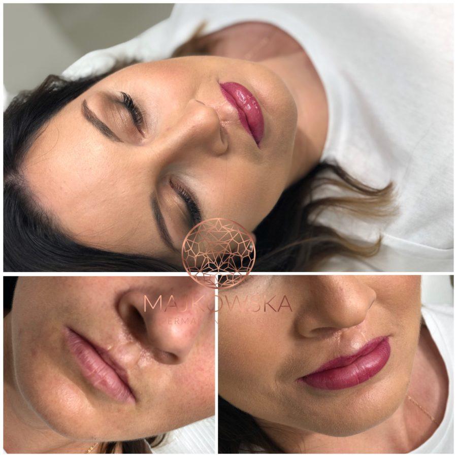 Makijaż permanentny ust po rozszczepie wargi