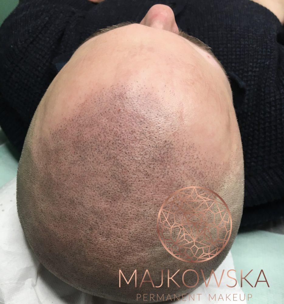 Pigmentacja skóry głowy Poznań Borówiec